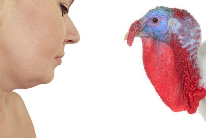 รู้ให้ชัด!!  เหนียงที่คอ หรือ เหนียงไก่งวง หรือ neck wattle  หรือ  turkey neck คืออะไร วิธีกำจัดหรือลดเหนียงทำยังไง ที่นี่มีคำตอบครับ